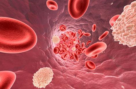 colesterolo ldl